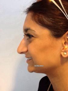 uppal nose23