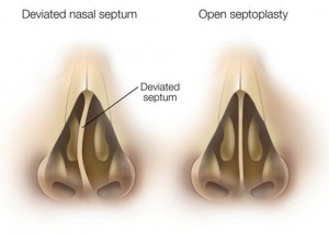 uppal septoplasty