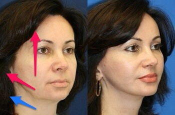 Face Lift   Nose Surgery